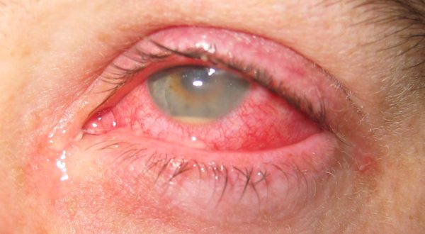 Rheumatic Diseases Can Lead to Vision Loss